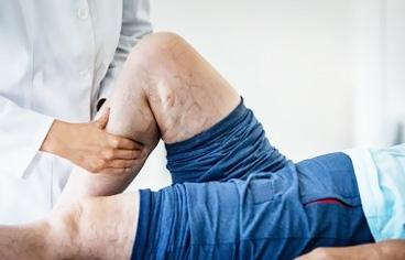 Bacaktaki damar tıkanıklığına hangi doktor bakar?